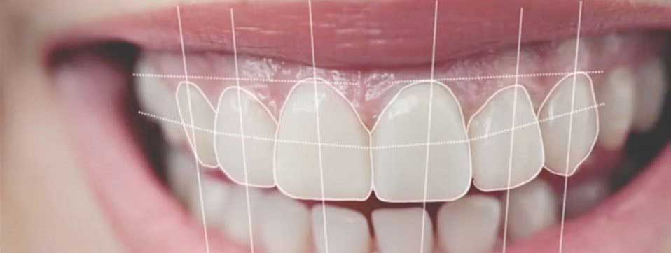 طراحی لبخند دیجیتال چیست؟