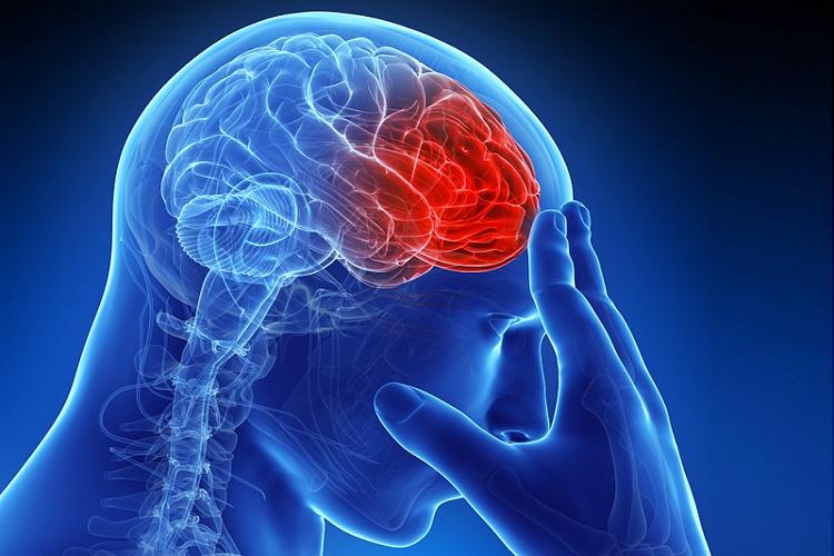 علت ۹۰ درصد سکتههای مغزی چیست؟ علت ۹۰ درصد سکتههای مغزی چیست؟